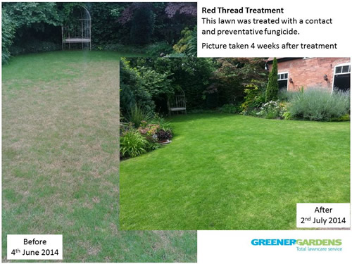 Red Thread Before and After Treatment